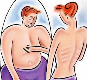 anorexia y bulimia - Anoressia nervosa